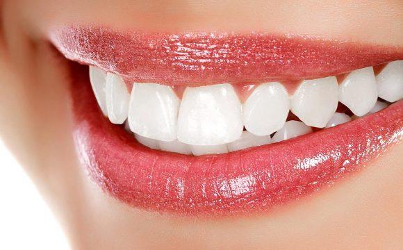 Diş Beyazlatma ( Bleaching )