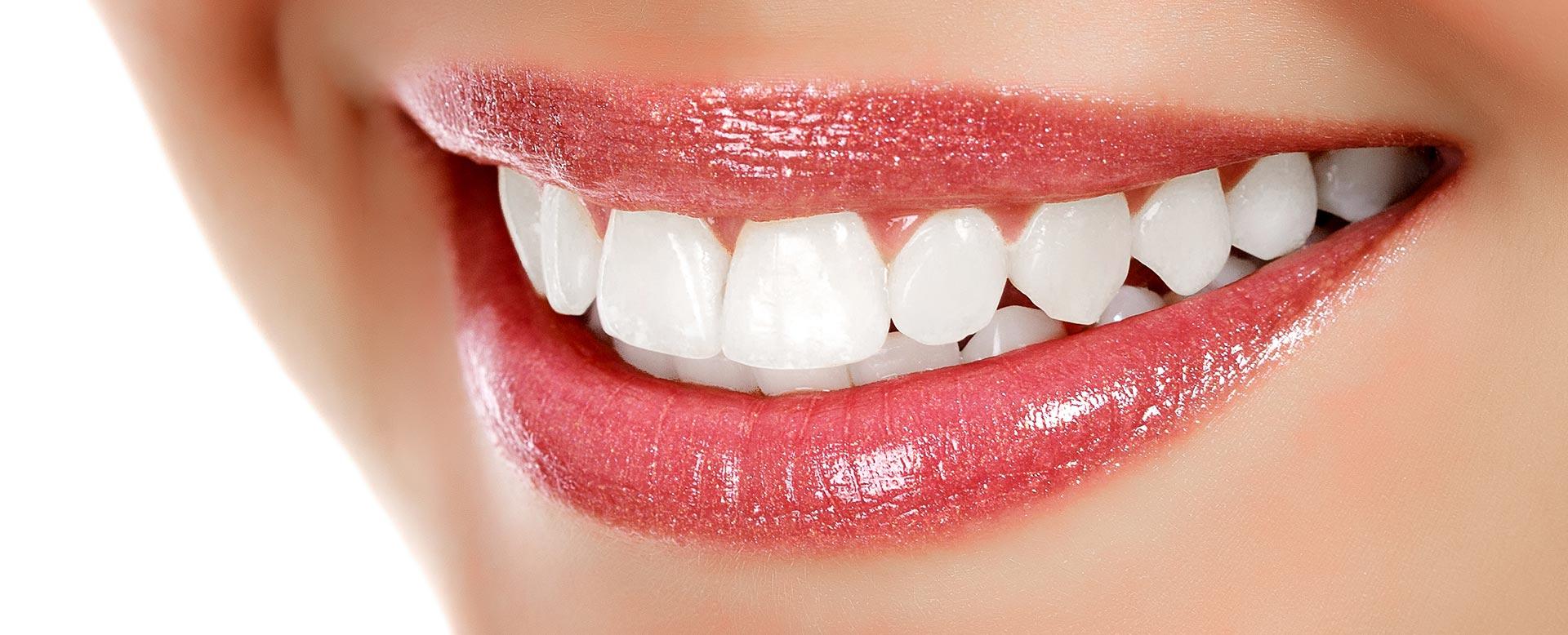 2 Dakikada Dişleri Beyazlatmak için Doğal Yöntemler