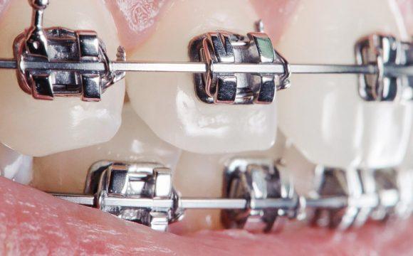 Ortodonti ( Diş Teli Tedavisi )