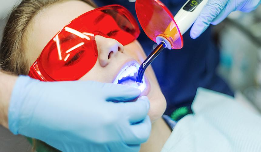 Diş Beyazlatma Nedir ? Zararlı Mıdır ?