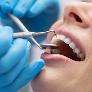 Diş Taşı Nedir ? Diş Taşı Nasıl Oluşur ?